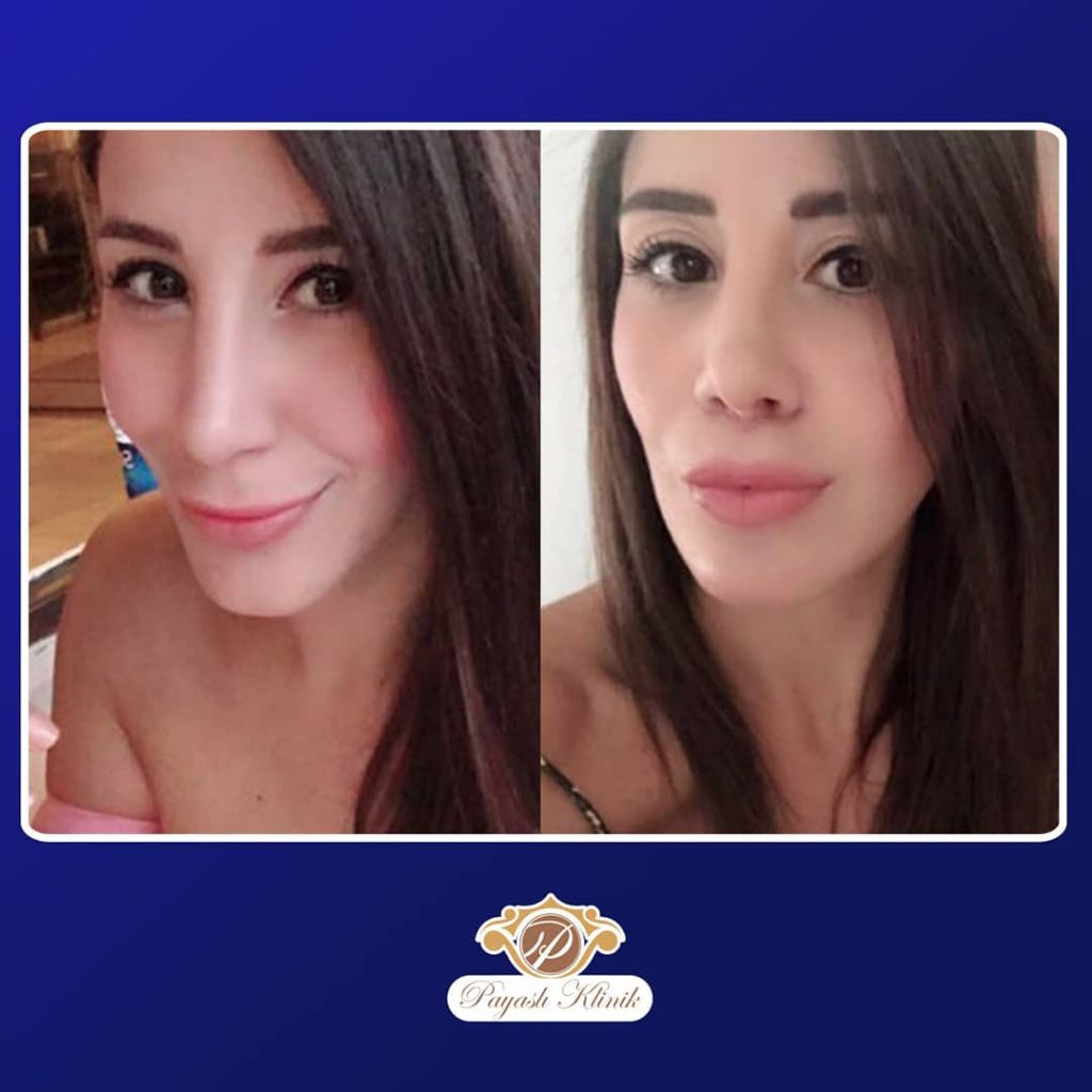 Payaslı Klinik Lip Lift Uygulaması Üst Dudak Kaldırma